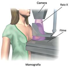 A mamografia