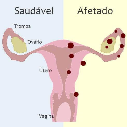 Comparação entre um útero saudável e um útero com áreas afetadas pela Endometriose.