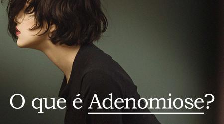 Dra Claudiani Branco explica sobre a Adenomiose. Foto por Cristian Newman no Unsplash.