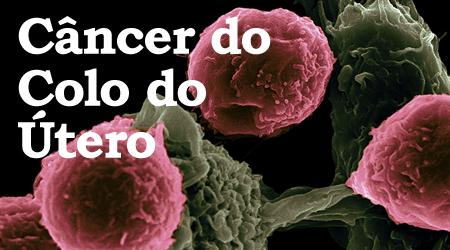 Ginecologista Dra. Claudiani Branco explica sobre o Câncer do Colo de Útero.  Foto por National Cancer Institute no Unsplash.