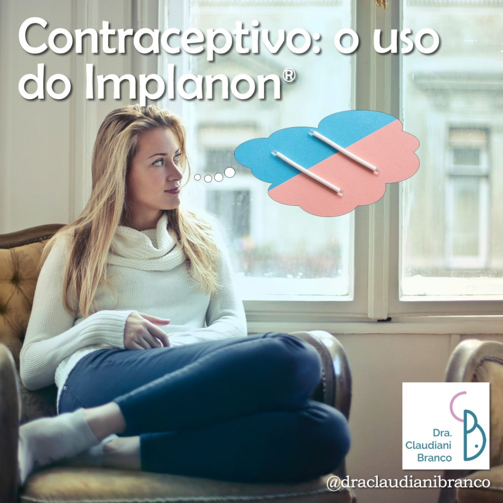 Dra Claudiani Branco Ginecologista fala sobre o contraceptivo Implanon. Imagem: Bruce Mars on Unsplash.