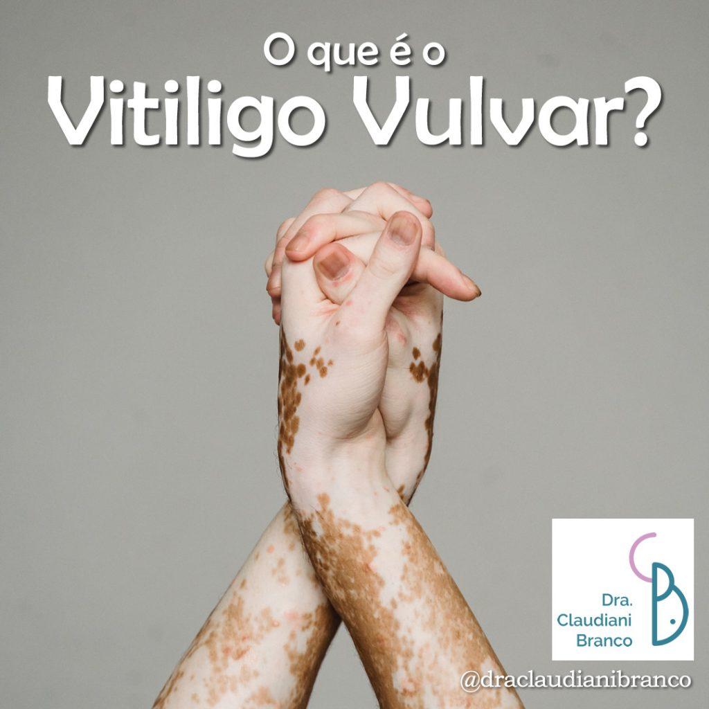 Dra Claudiani Branco Ginecologista fala sobre o Vitiligo Vulvar. Imagem: Armin Rimoldi no Pexels.