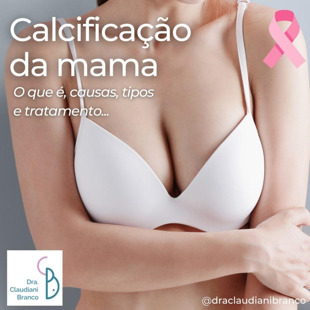 Ginecologista Dra Claudiani Branco fala sobre a calcificação de mama e por que isso é importante no combate ao câncer de Mama